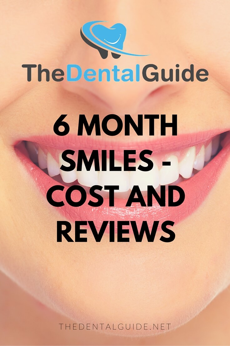 6 month smiles cost and reviews the dental guide solutioingenieria Choice Image
