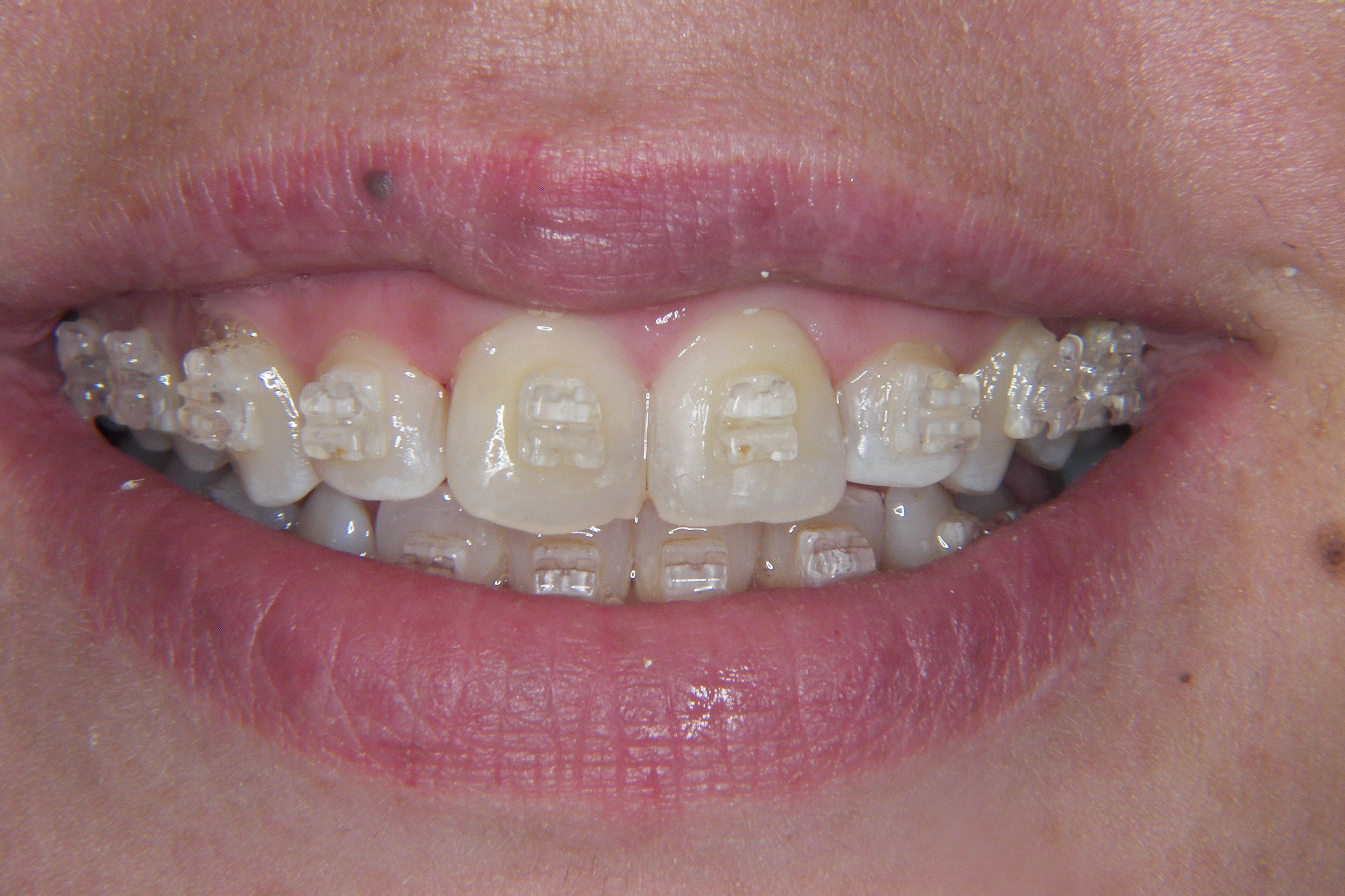 How much do braces cost in the uk the dental guide 6 month smiles solutioingenieria Images