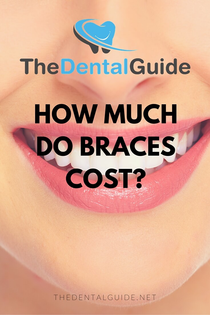 How Much Do Braces Cost In The UK?