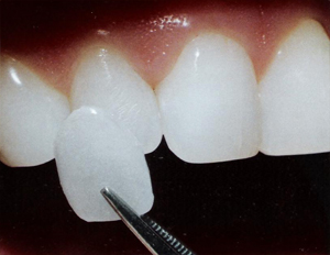 How Much Do Dental Veneers Cost in the UK? - The Dental Guide