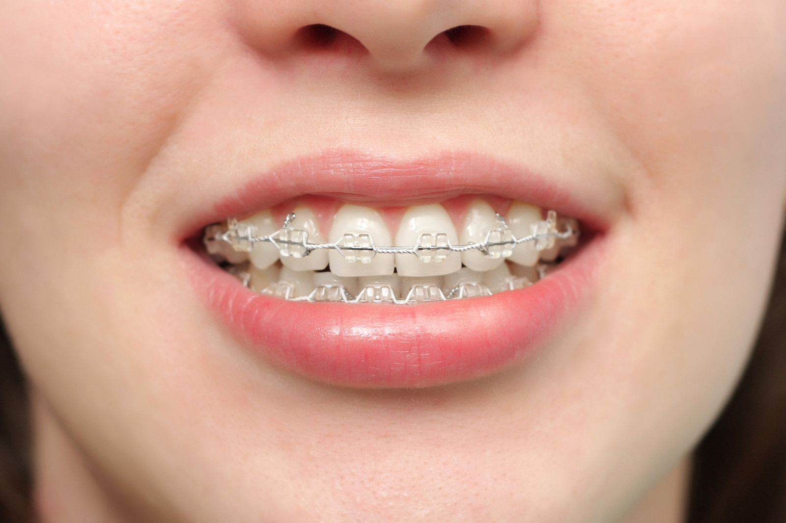 Braces Clear Wire | How Much Do Braces Cost In The Uk The Dental Guide