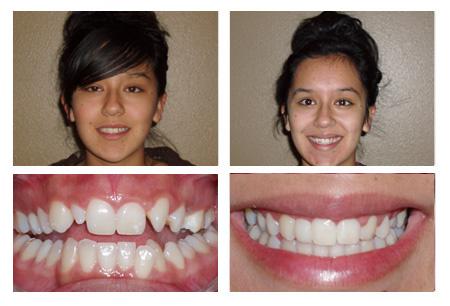 Credit dentistfontana.com