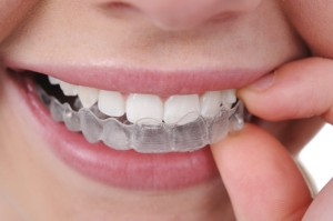 invisalign costs