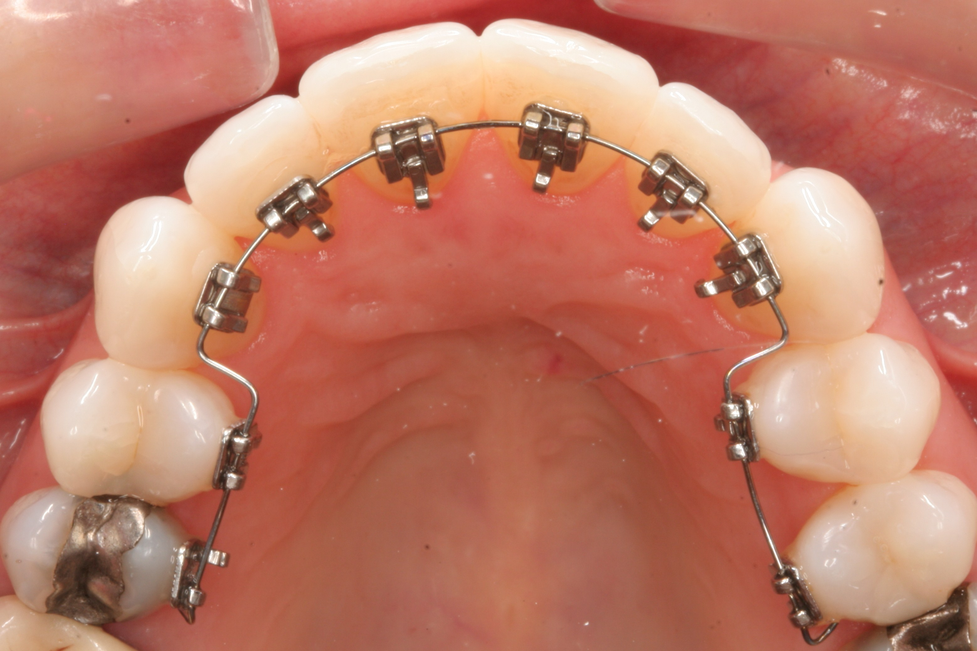 How much do braces cost in the uk the dental guide lingual braces solutioingenieria Image collections
