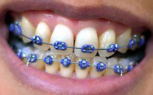metal braces cost