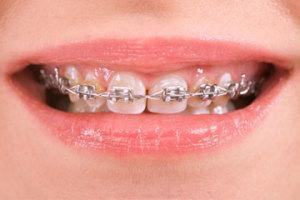 smart bracket braces