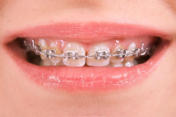 How much do braces cost in the uk the dental guide smart bracket braces solutioingenieria Gallery