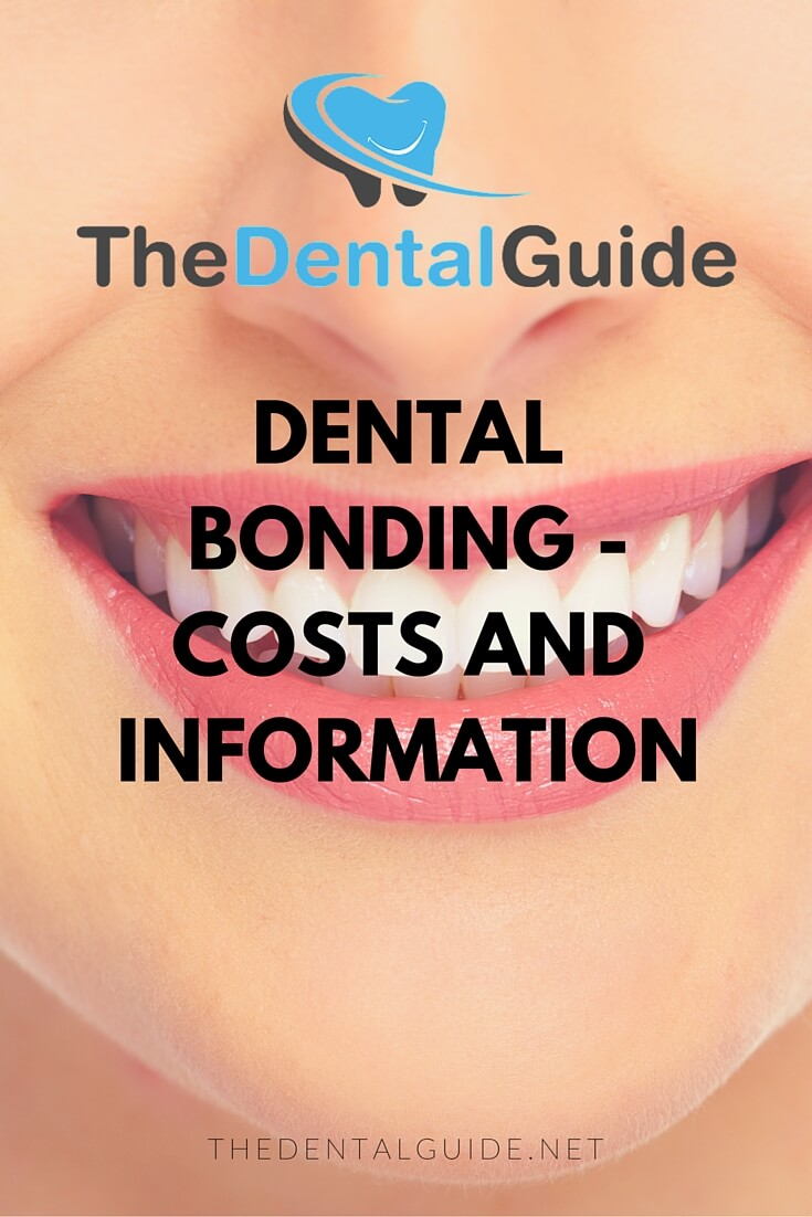 Dental bonding costs and information the dental guide solutioingenieria Gallery