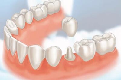 Dental Crowns Costs Amp Information The Dental Guide