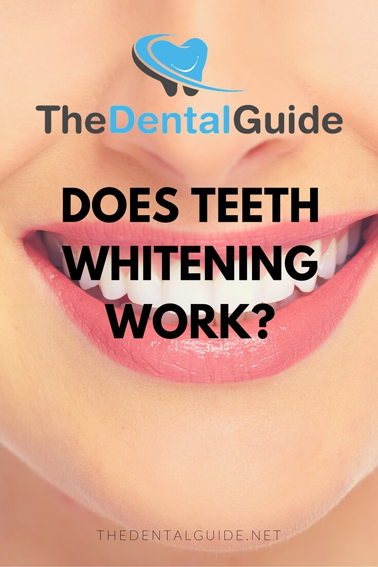 Best Whitening Toothpaste >> Does Teeth Whitening Work? - The Dental Guide