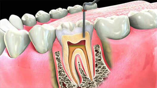 Root Canal Treatment Costs And Information Dental Guide