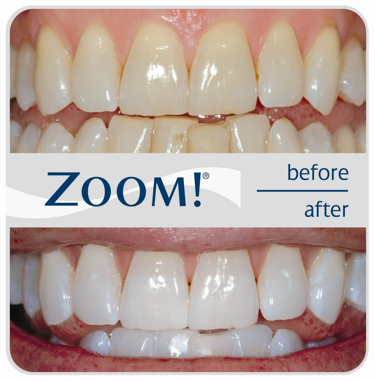 Zoom Teeth Whitening Costs Reviews The Dental Guide