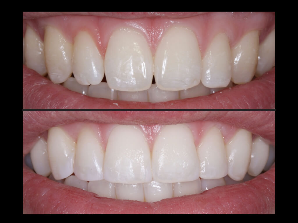 Dental Bonding Costs And Information The Dental Guide