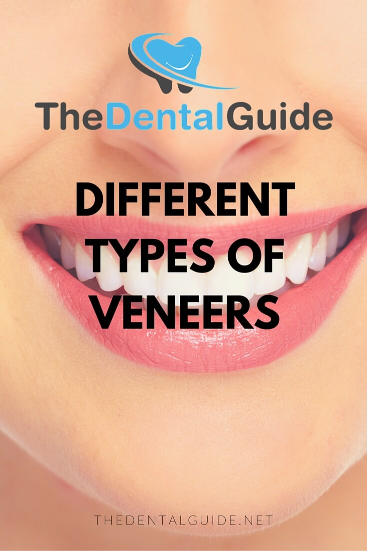 Different Types Of Veneers The Dental Guide