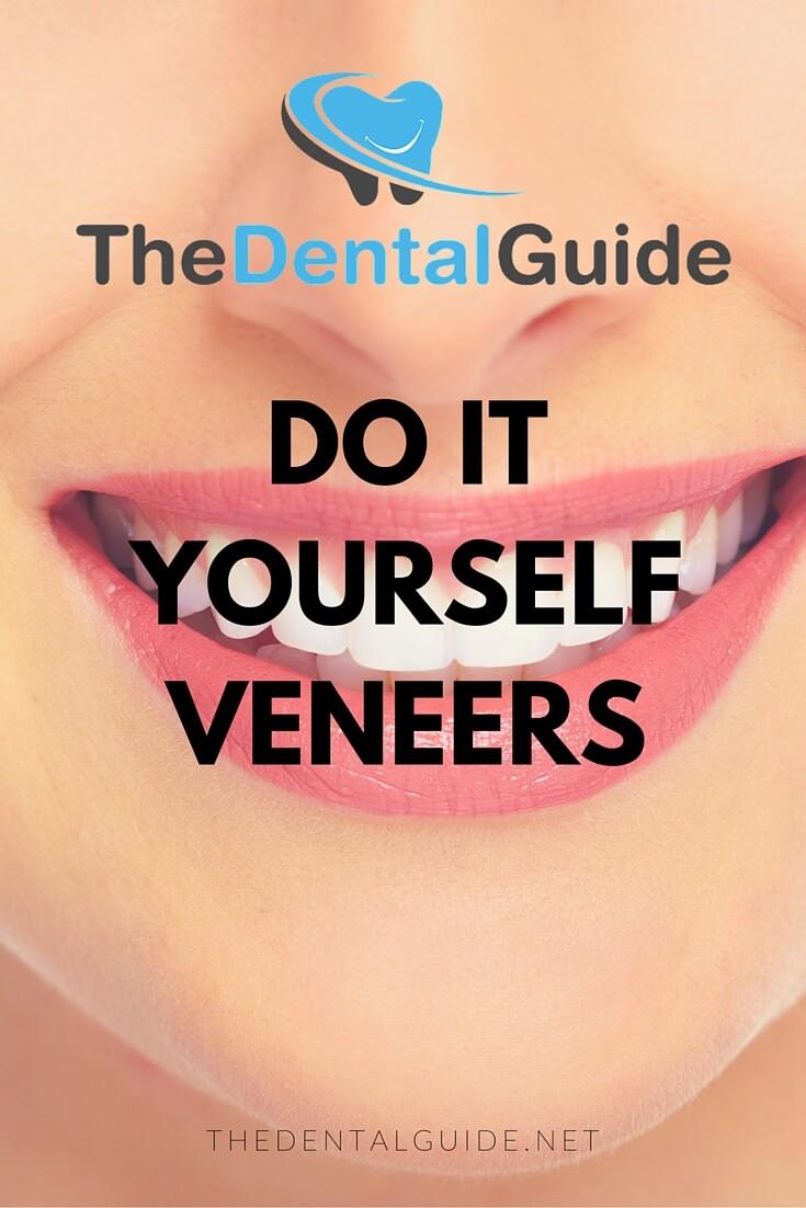 do it yourself veneers the dental guide. Black Bedroom Furniture Sets. Home Design Ideas