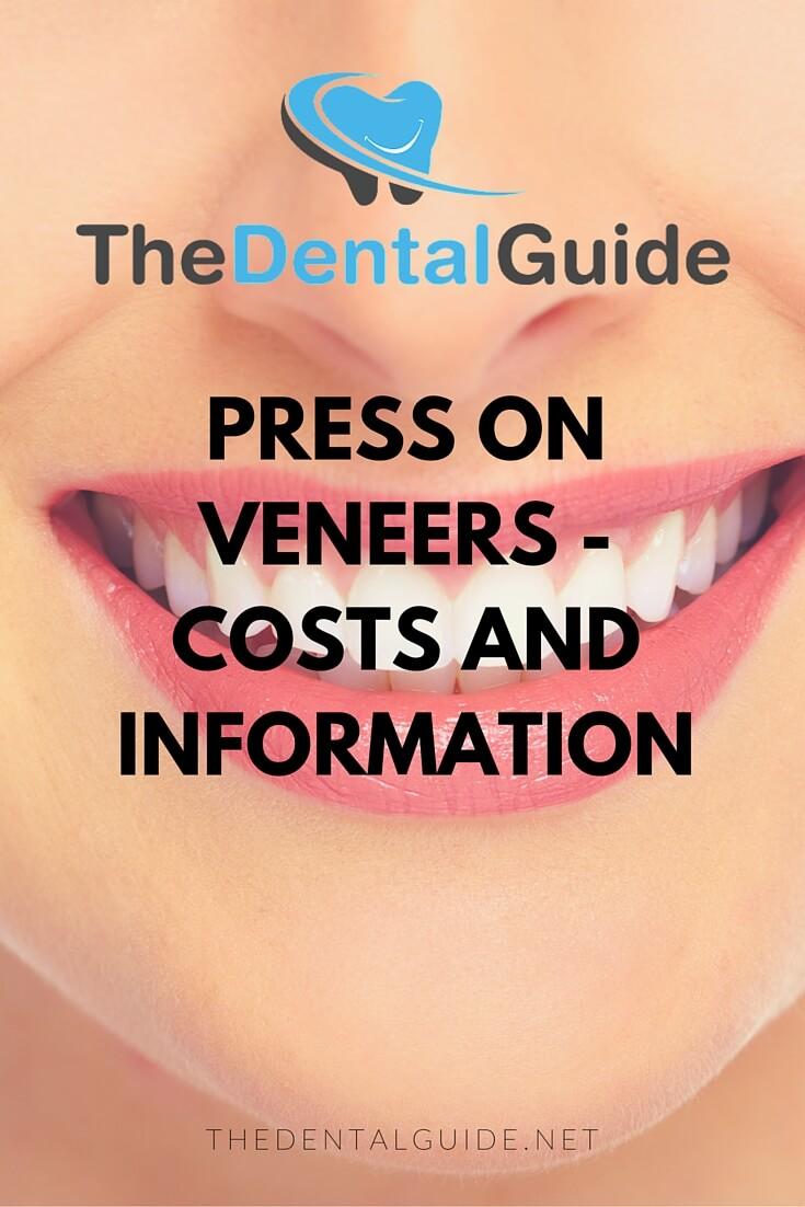 press on veneers the dental guide