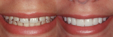 can you whiten veneers