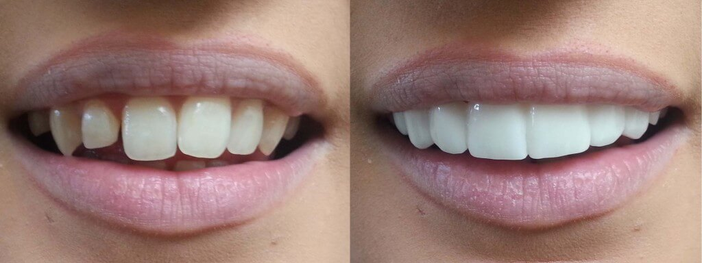 clip-on-veneers-bleach-shade-before-afters