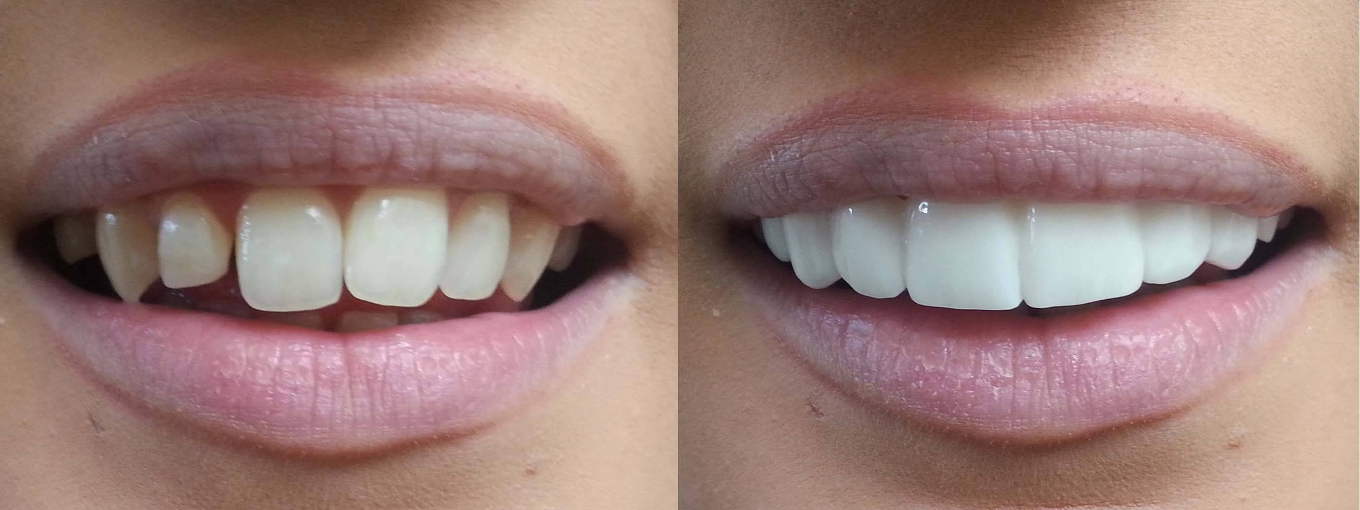 Press on veneers the dental guide clip on veneers bleach shade before afters solutioingenieria Image collections