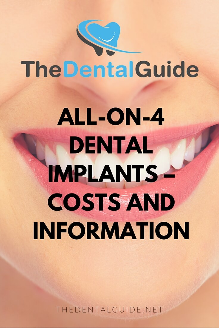 Clear Choice Insurance >> All-On-4 Dental Implants - The Dental Guide