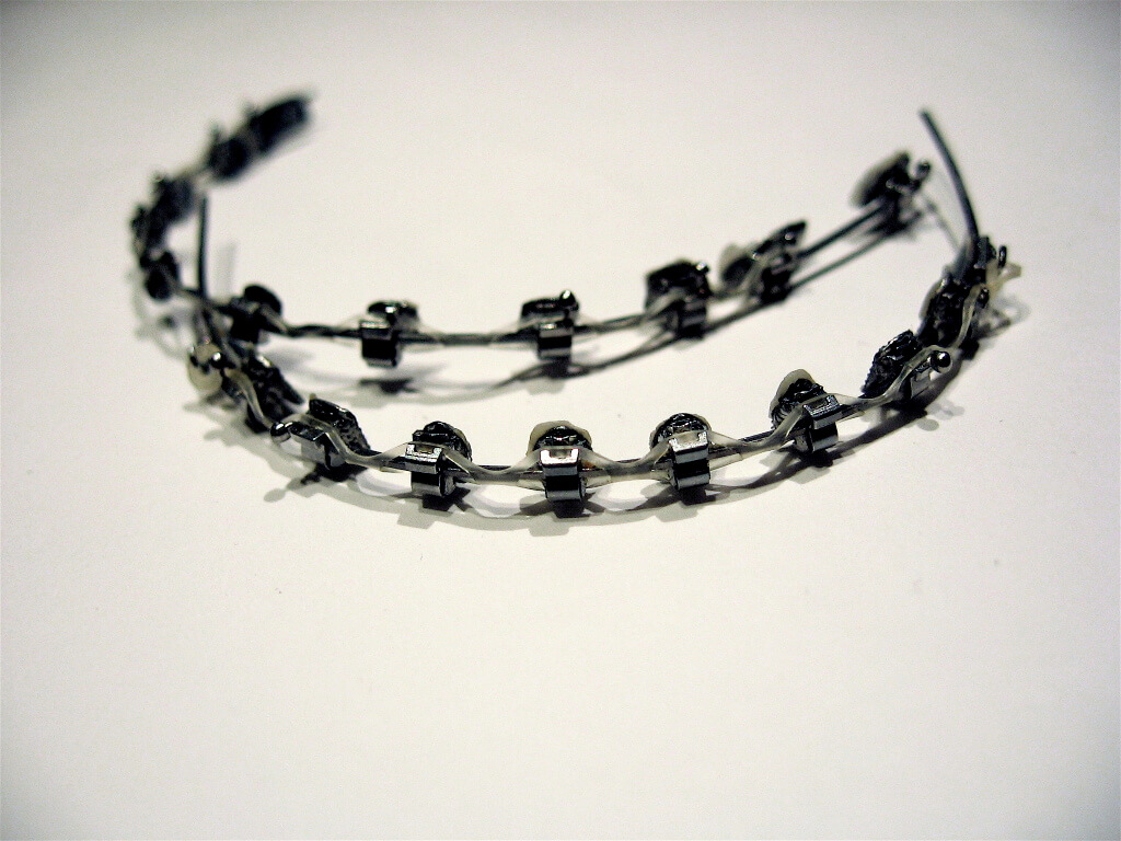 Dental_braces