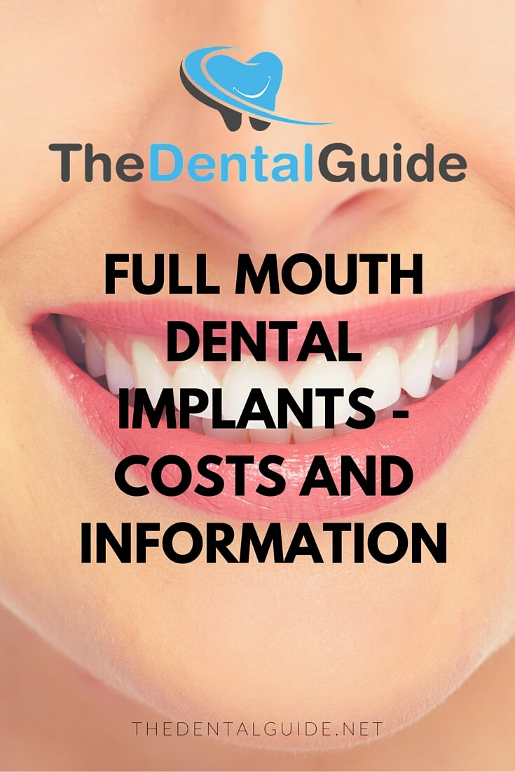 Full Mouth Dental Implants Cost - Collage Porn Video