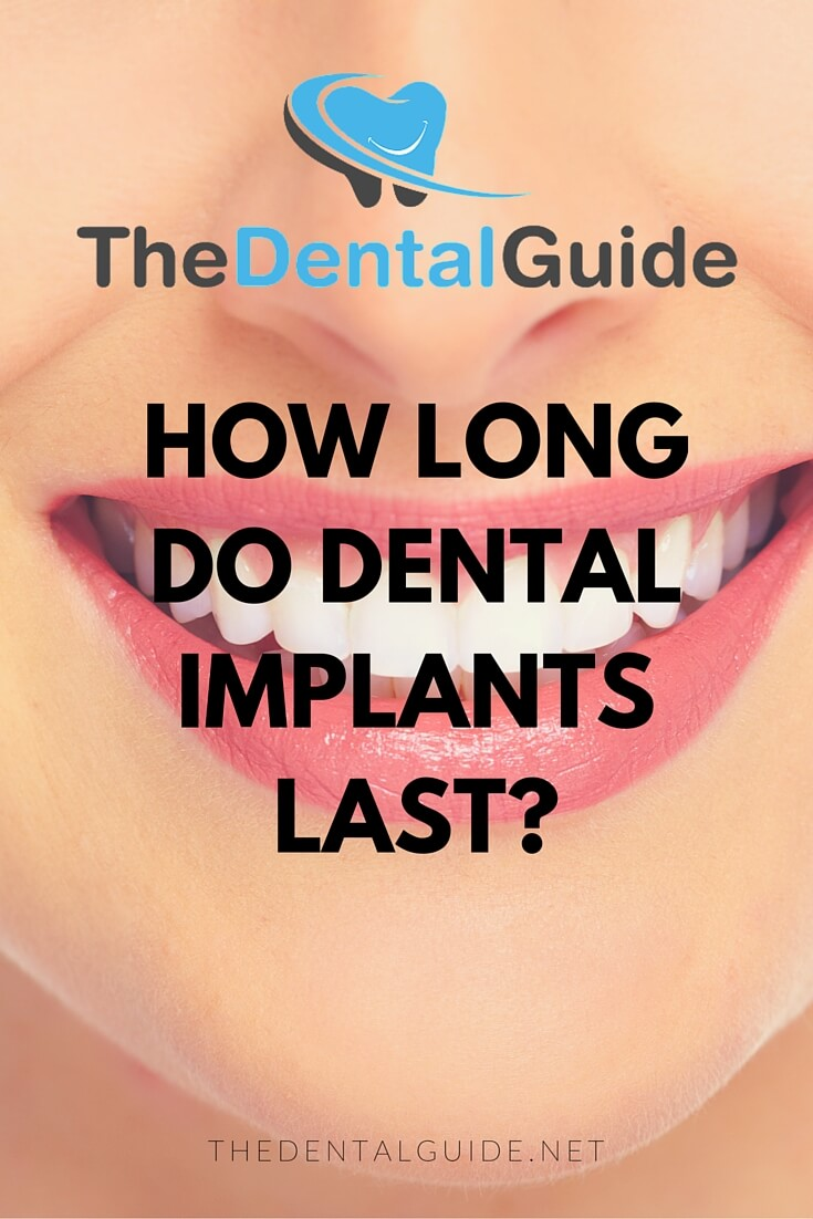 How Much Is Insurance >> How Long Do Dental Implants Last? - The Dental Guide
