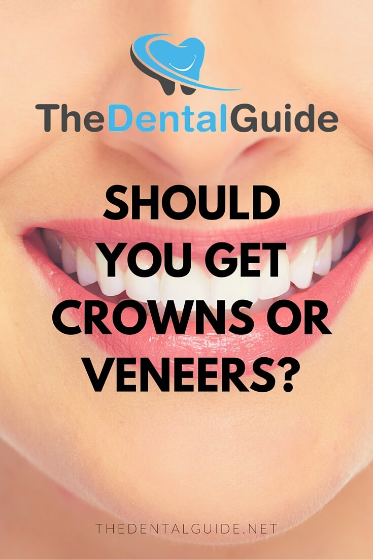 Should You Get Crowns Or Veneers The Dental Guide