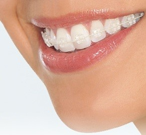 Ceramic Braces For Adults 83