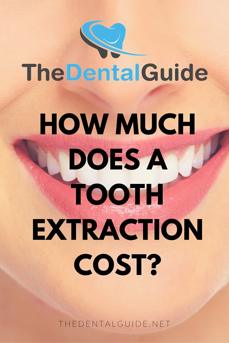 How Much Does A Tooth Extraction Cost? - The Dental Guide